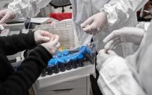 Azərbaycanda daha 325 nəfər koronavirusa yoluxdu